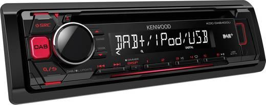 kenwood kdc dab400u autoradio dab tuner anschluss f r. Black Bedroom Furniture Sets. Home Design Ideas